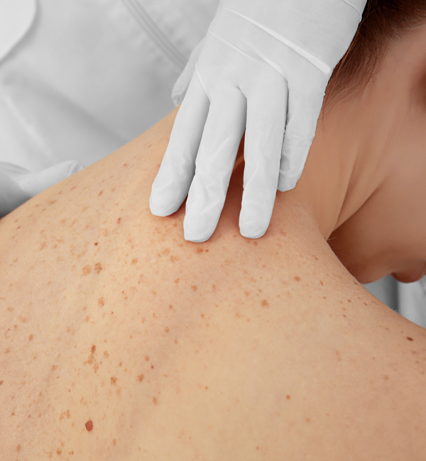 doctor checking for lesions on woman's upper back